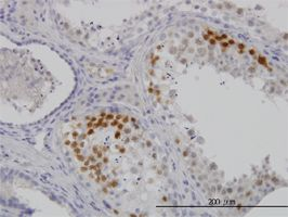 Immunohistochemistry (Formalin/PFA-fixed paraffin-embedded sections) - Cdk3 antibody (ab54514)