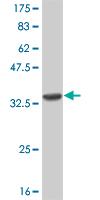 Western blot - Cannabinoid Receptor II antibody (ab54565)
