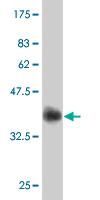 Western blot - Choline Acetyltransferase antibody (ab54599)