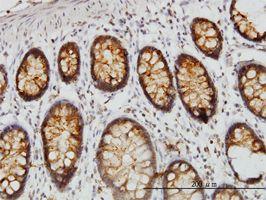 IHC-P - DARS antibody (ab54601)
