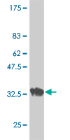 Western blot - Acetylcholine Receptor Protein delta Precursor antibody (ab54622)