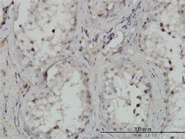 IHC-P - IKK alpha antibody (ab54626)