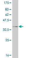 Western blot - Eph receptor A4 antibody (ab54636)