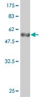 Western blot - beta B1 Crystallin antibody (ab54655)