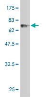 Western blot - CLN3 antibody (ab54687)