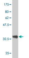 Western blot - DCTD antibody (ab54737)