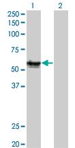 Western blot - RAGE antibody (ab54741)