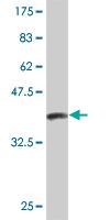 Western blot - Serum Amyloid P antibody (ab54783)