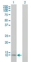 Western blot - Apolipoprotein CI  antibody (ab54800)
