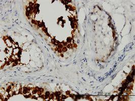 IHC-P - ART3 antibody (ab54805)