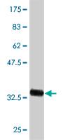 Western blot - ADK antibody (ab54818)