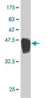 Western blot - ARHGDIG antibody (ab54841)