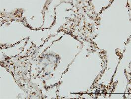 IHC-P - Bik antibody (ab54862)