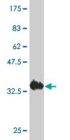 Western blot - ACYP2 antibody (ab54964)