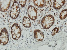 IHC-P - ENO3 antibody (ab54981)