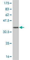 Western blot - Metabotropic Glutamate Receptor 7 antibody (ab55066)