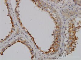 IHC-P - GGT1 antibody (ab55138)