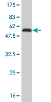 Western blot - Glutathione S Transferase theta 1  antibody (ab55188)