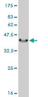 Western blot - Guanylyl Cyclase alpha 1 antibody (ab55215)