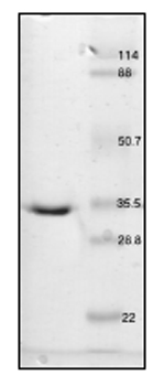 SDS-PAGE - Carbonic Anhydrase III protein (His tag) (ab55235)