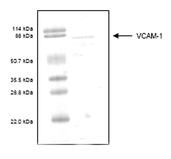 SDS-PAGE - VCAM1 protein (His tag) (ab55238)