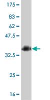 Western blot - Homeo box C10 antibody (ab55248)