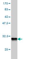 Western blot - HOXD8 antibody (ab55252)