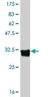 Western blot - 5HT5A receptor antibody (ab55300)