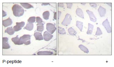 Immunohistochemistry (Paraffin-embedded sections) - AMPK beta 1 (phospho S181) antibody (ab55311)