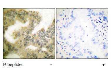 Immunohistochemistry (Paraffin-embedded sections) - Cyclin D3 (phospho T283) antibody (ab55322)