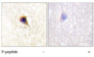 Immunohistochemistry (Paraffin-embedded sections) - FAK (phospho Y576) antibody (ab55335)