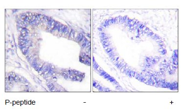 Immunohistochemistry (Paraffin-embedded sections) - IRS1 (phospho S1101) antibody (ab55343)