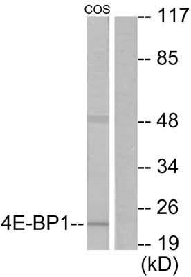 Western blot - eIF4EBP1 antibody (ab55362)