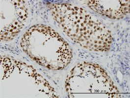 Immunohistochemistry (Formalin/PFA-fixed paraffin-embedded sections) - Kif2a antibody (ab55383)