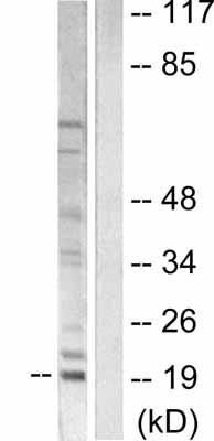 Western blot - Mammaglobin A antibody (ab55416)