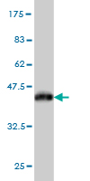 Western blot - Myosin light chain kinase antibody (ab55475)