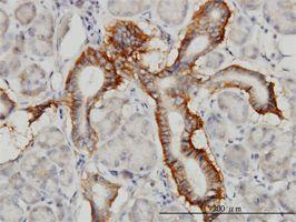 IHC-P - PCDH1 antibody (ab55504)