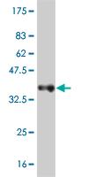 Western blot - ADAM11 antibody (ab55519)