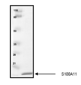 SDS-PAGE - S100A11 protein (His tag) (ab55569)