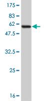 Western blot - PHYH antibody (ab55585)