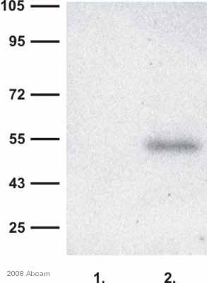 Western blot - RAB27A antibody (ab55667)
