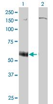 Western blot - P2X5b antibody (ab55675)