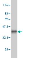 Western blot - SGK1 antibody (ab55685)
