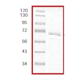 SDS-PAGE - MAP3K8 protein (Active) (ab55700)