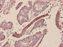 IHC-P - Serum Amyloid A antibody (ab55720)
