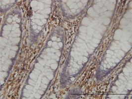 Immunohistochemistry (Formalin/PFA-fixed paraffin-embedded sections) - SHMT1 antibody (ab55736)