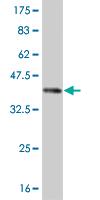 Western blot - ROR2 antibody (ab55766)