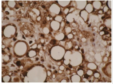 Immunohistochemistry (Formalin/PFA-fixed paraffin-embedded sections) - CYPIVF11 antibody [F21 P6 F5] (ab55841)