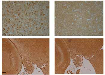 Immunohistochemistry (Formalin/PFA-fixed paraffin-embedded sections) - Beclin 1 antibody (ab55878)