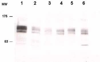 Western blot - eIF4ENIF1 antibody (ab55880)